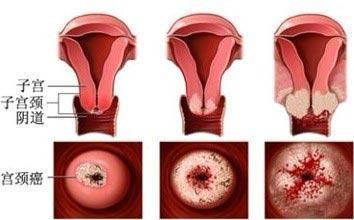 专家解析:宫颈黏液引起的不孕如何治疗